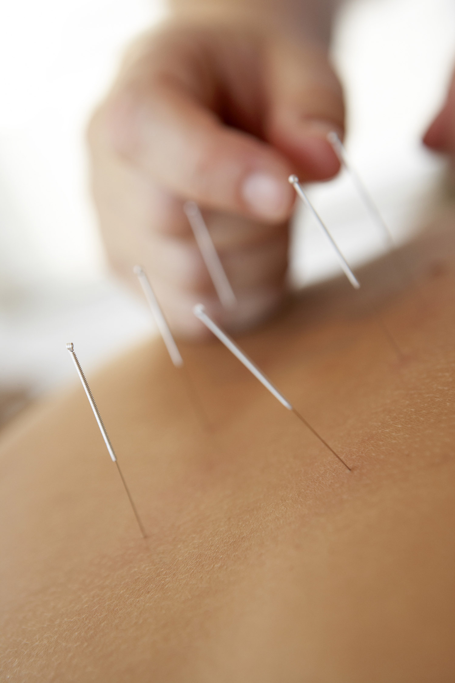 Acupuncture in Stockport, Cheshire
