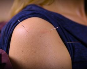 Acupuncture treatments in Stockport